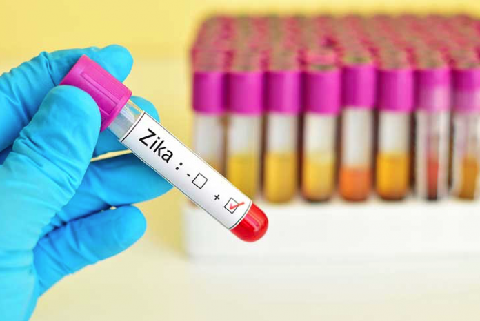 An Update on Zika Virus Testing in Pregnant Women – Lab Testing Matters